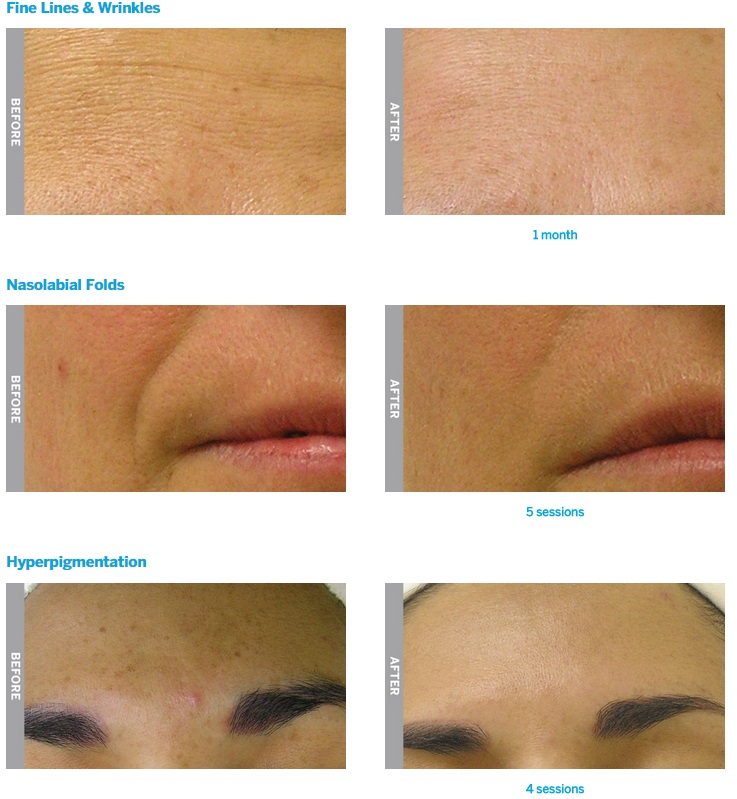 Hydrafacial before and after 1 - Scottsdale facial