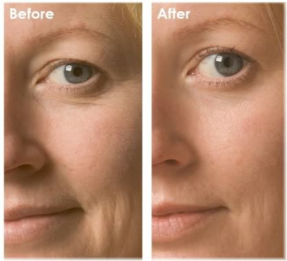 Oxygen Facial before and after